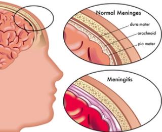 Meningitis : Penyakit Sumsum tulang belakang dan Otak