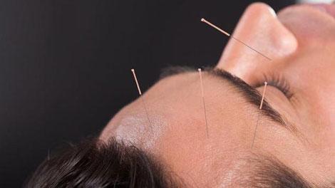 Akupunktur untuk Sakit Kepala - www.klikdokter.com