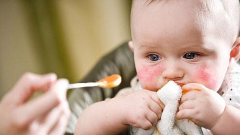 Alergi Kacang pada Bayi - coolmom.info