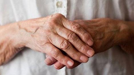 Arthritis - www.mnn.com