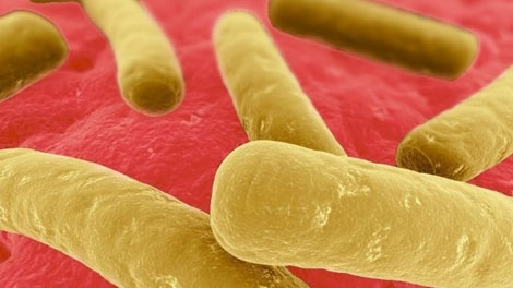 Clostridium difficile - www.avant-medical.com