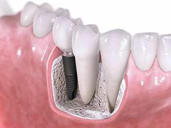 Biaya Pemasangan Implan Gigi dan Tahapan Metode Pemasangannya