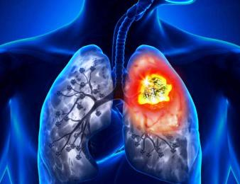 Patofisiologi & Pathway Kanker Paru