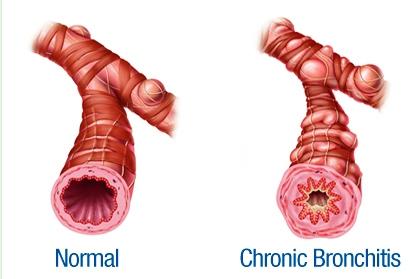 Terapi Pengobatan untuk Penderita Bronkitis Kronis