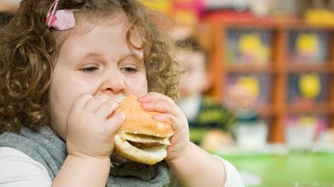 Obesitas pada Anak  - www.iran-daily.com