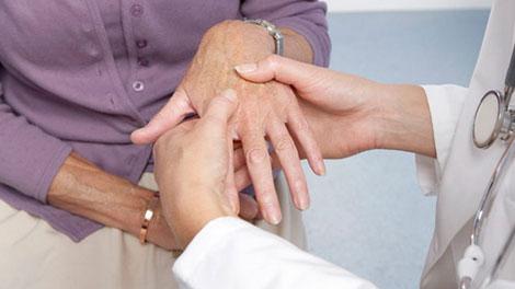Penderita Arthritis - lifestyle.okezone.com