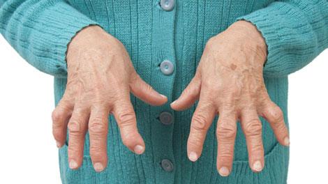 Rheumatoid Arthritis - ghr.nlm.nih.gov