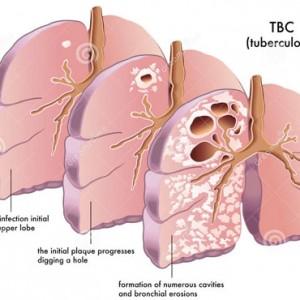 Pengobatan TBC Dihentikan, Picu Tuberculosis Multi Drug Resistant