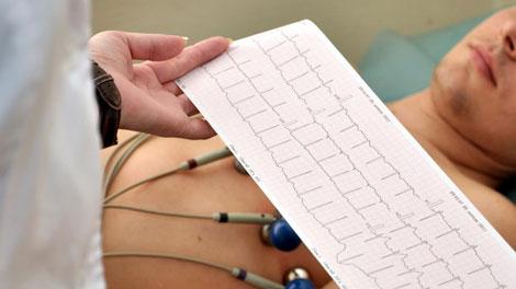 Tes Electrocardiogram - www.khoocardiology.com