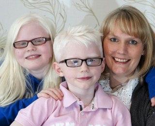 Gejala Penyakit / Kelainan Albino