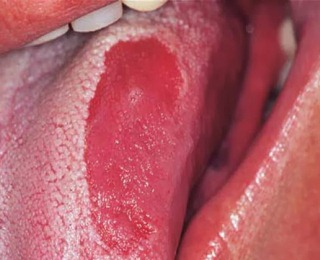 Berbagai Gangguan dan Penyakit pada Lidah