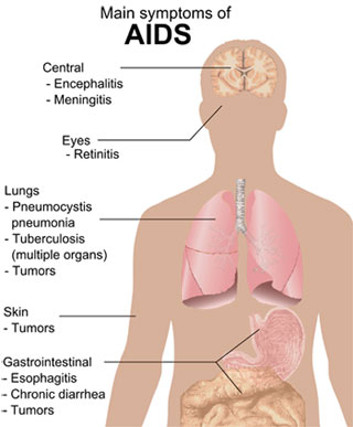 gejala_AIDS-wikipedia