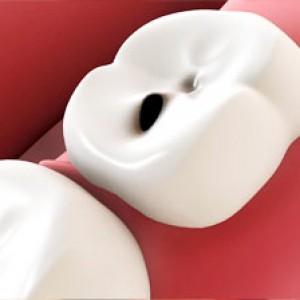 Obat dan Terapi Sakit Gigi Berlubang yang Paling Ampuh