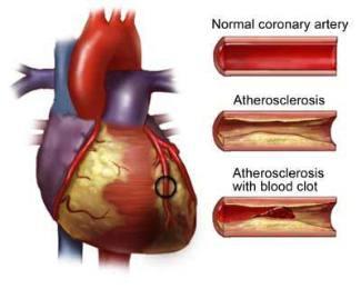 Penyakit Kardiovaskuler : Gejala  Jantung Koroner