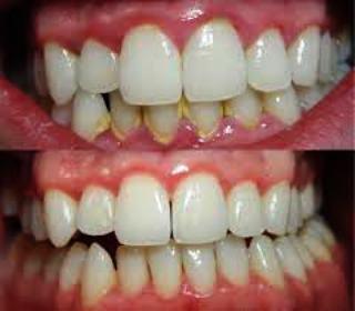 Cara Ampuh Menghilangkan Karies Gigi