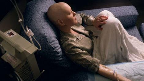 kemoterapi kanker - jenisjeniskanker.blogspot.com