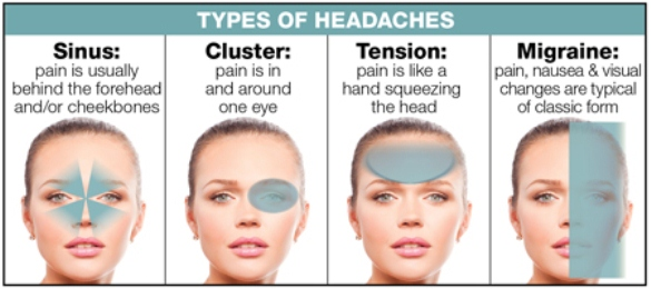 klasifikasi_Sakit_kepala