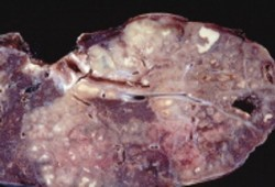 Gambar Penyakit TBC (tuberculosis)