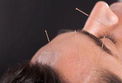 Akupunktur untuk Sakit Kepala, Seberapa Efektif?