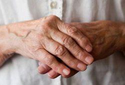 Tips Mudah Mengelola Gangguan Arthritis