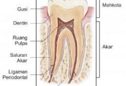 Kenapa Gigi Berlubang Bisa Terasa Sakit ?