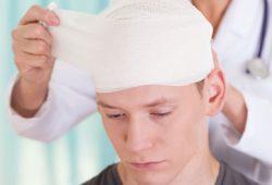Memahami Cedera Kepala dan Gegar Otak