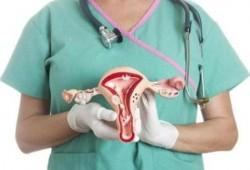 Definisi, Jenis, dan Penyebab Kanker Ovarium : Kanker Ovarium Adalah