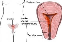 Tanda – Tanda Kanker Endometrium Rahim – Uterus