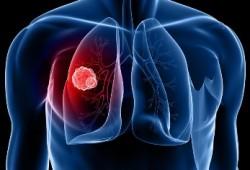Waspada, ini 8 Gejala Awal Kanker Paru-paru