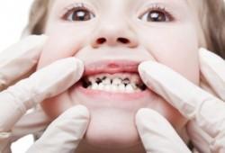 Cara Menghilangkan Karies Gigi dan Mengobati Bekasnya