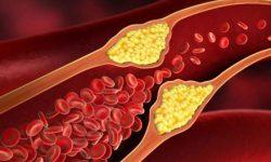 Memahami Kolesterol HDL dan LDL