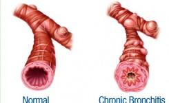 Kronik Bronkitis