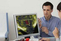 Ada Efek Samping, Pria Menyesal Melakukan Pengobatan Kanker Prostat