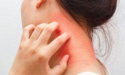 Alternatif Pengobatan untuk Reaksi Alergi Parah