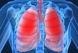 Gejala Sakit Paru – paru : PPOK, Pneumonia, dan Kanker Paru