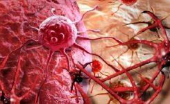 sel-kanker