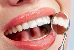 6 Cara menghilangkan Karies atau Karang Gigi