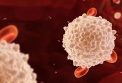 Kenali Bahaya dari Kelebihan Sel Darah Putih pada Tubuh