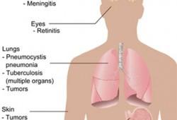 Penyebab, Gejala, dan Penanggulangan Penyakit HIV/AIDS
