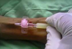 Terapi Intravena : Definisi dan Macam Kegunaannya