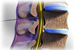 Jenis Obat untuk Sakit Tulang Belakang : Oral, Topikal, Injeksi