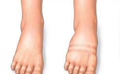 kakibengkak-edema