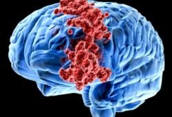 Ciri-ciri, Tanda, dan Gejala Kanker Otak