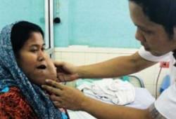 Gejala Tumor Rongga Mulut Sering Tidak Disadari