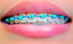 kawat-gigi