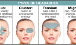 Klasifikasi Nyeri Kepala menurut Organisasi International Headache Society (IHS)