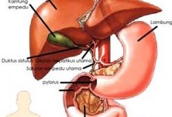 Cara Pengobatan Kanker Hati dengan Transplantasi