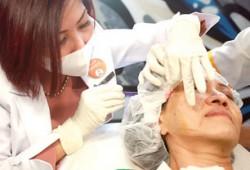 Shaping Wajah dan Mengencangkan Kulit secara Instan dengan Metode Tanam Benang