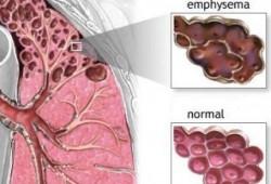Ciri-ciri Penyakit Paru Obstruktif Kronis (PPOK)