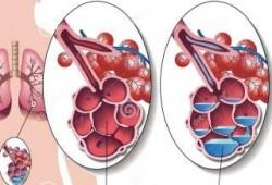 Ciri-ciri Paru-paru Basah atau Pneumonia